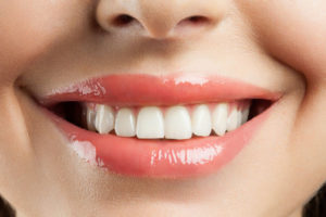 Teeth Whitening in Irvine