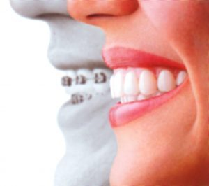 Invisalign Irvine Doctor2th