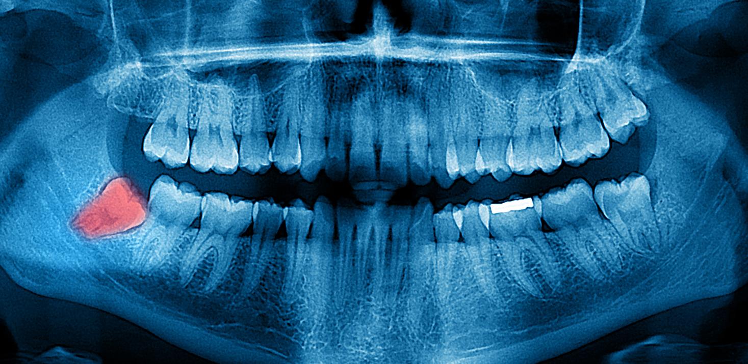 Рентген зубов 95