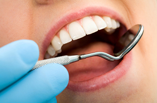 Composite (Metal Free) Fillings  in Irvine