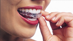 Invisalign Orthodontics  in Irvine