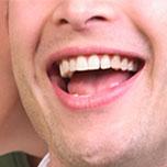 dental implants irvine